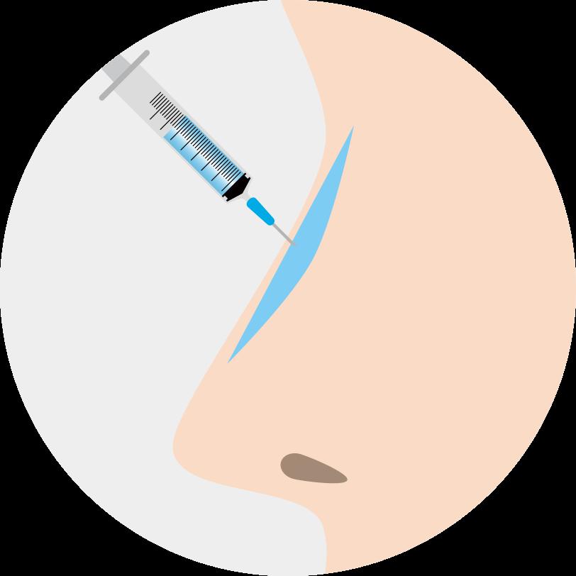 隆鼻術(注射注入)