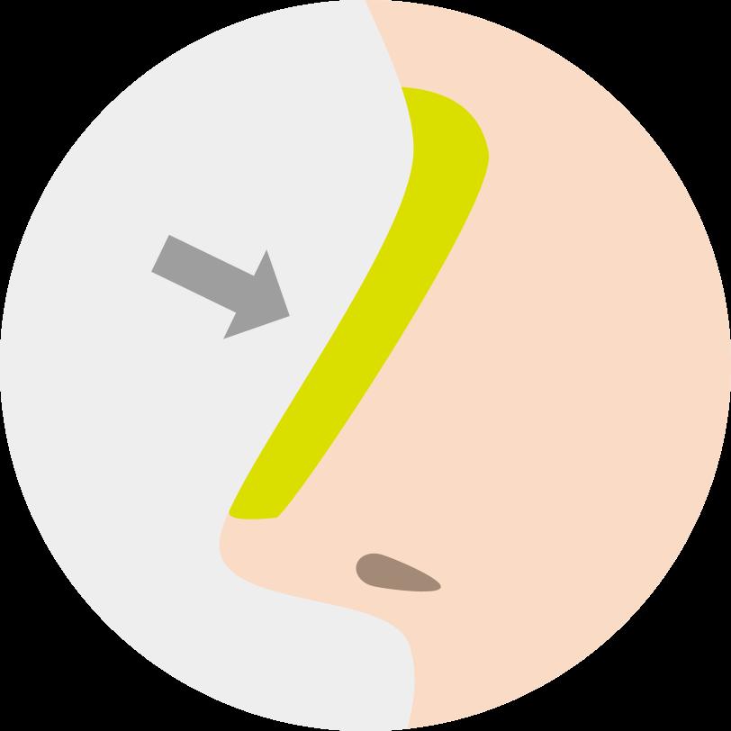 隆鼻術(手術)